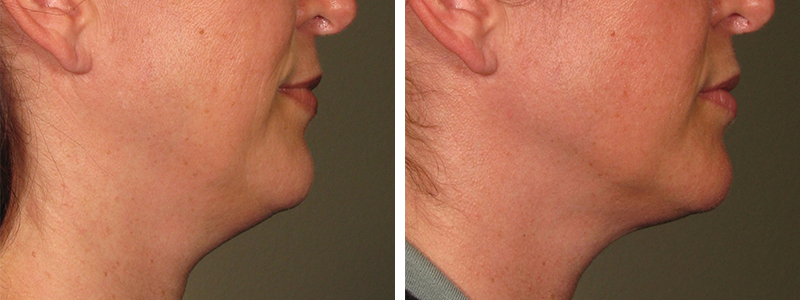 Ultherapy before after patient 1.