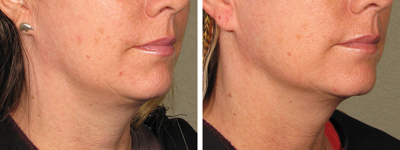 Ultherapy before after 2.